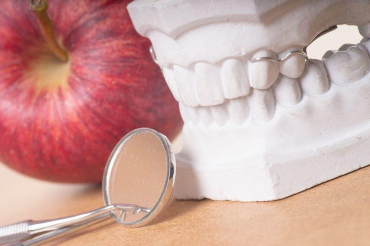 protesi dentale mobile o fissa