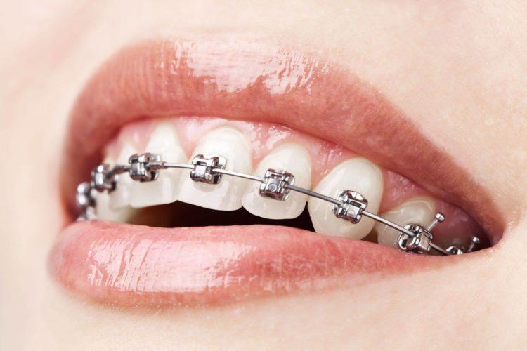 Apparecchio dentale mobile