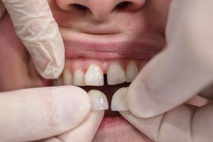 Come vengono applicate le faccette ai denti