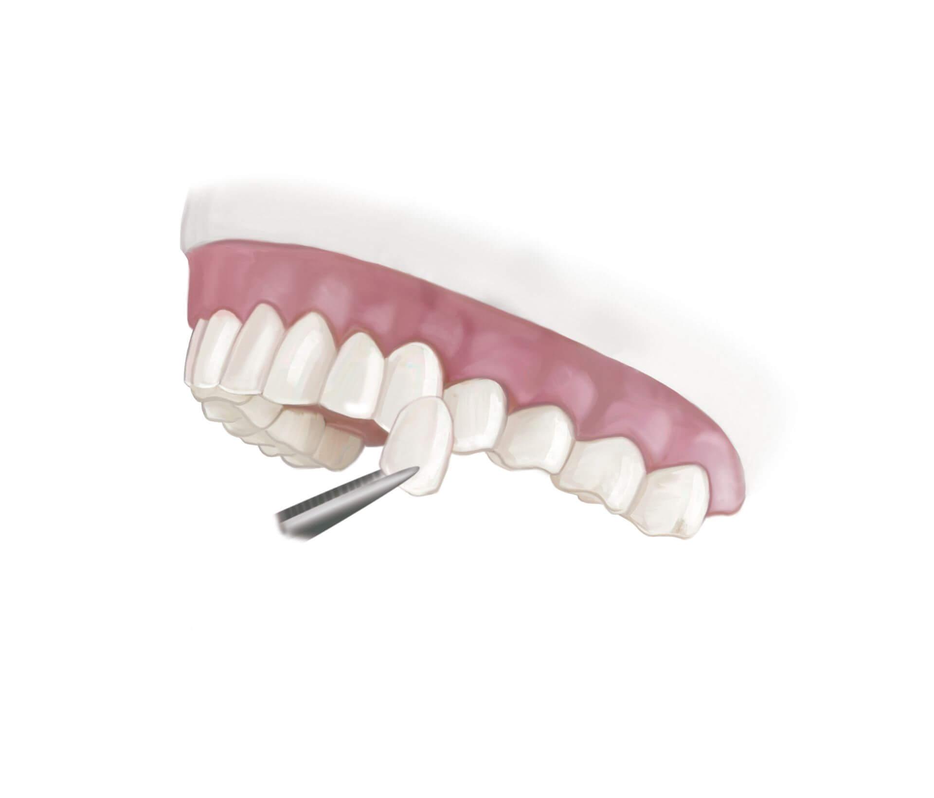 Faccette dentali in porcellana la manutenzione