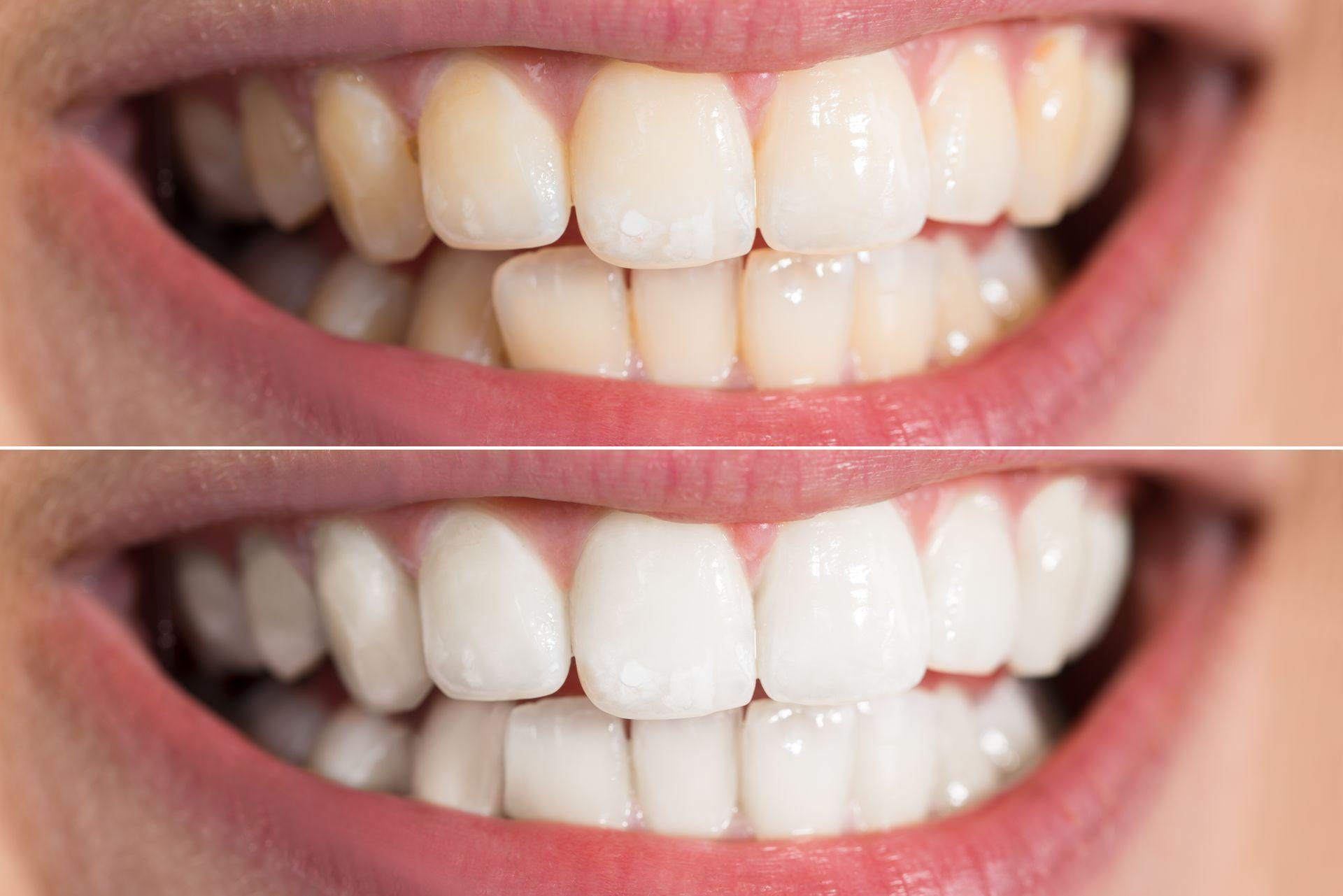 Faccette dentali prima e dopo con la Clinica Dentistica di Como