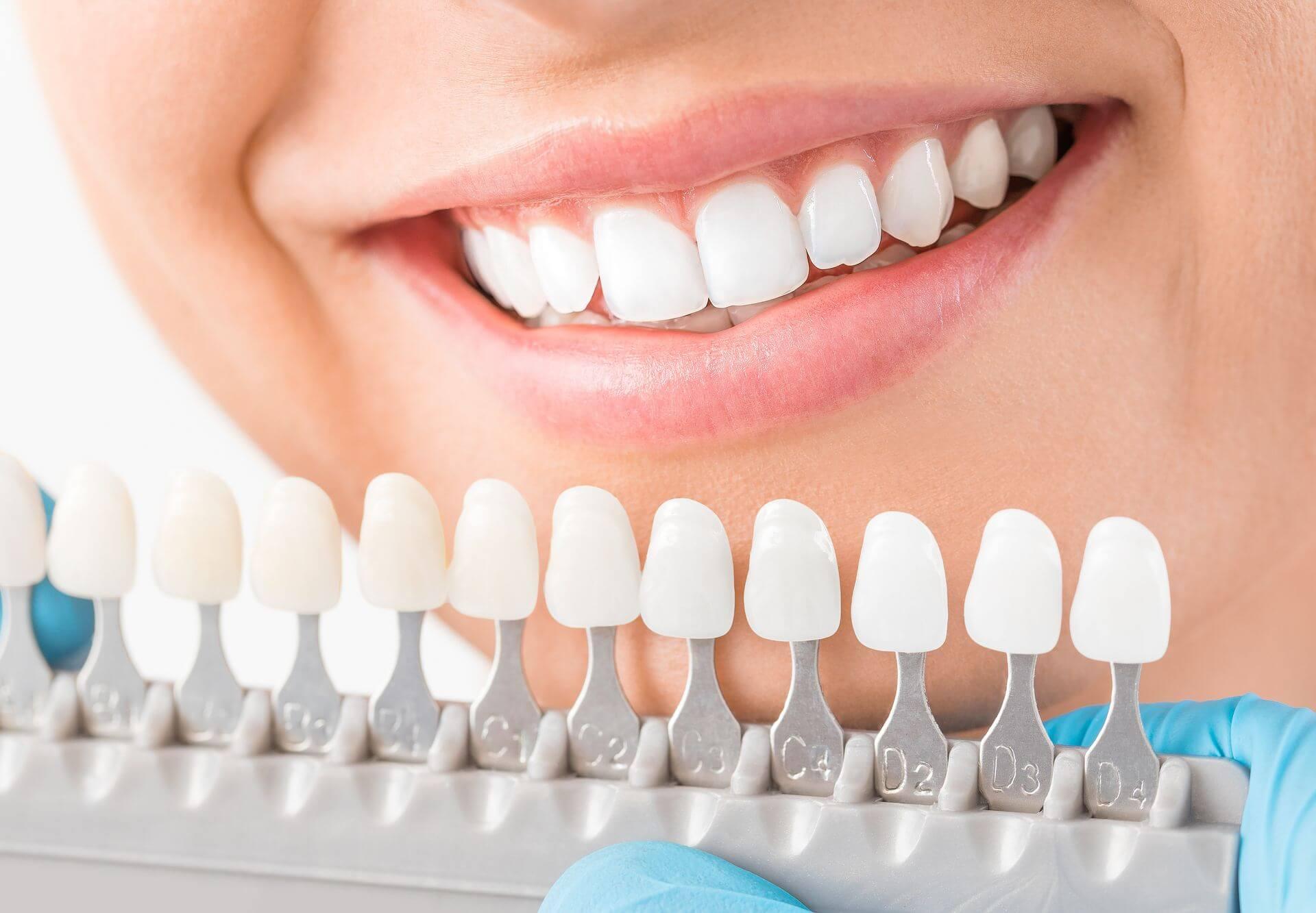 La protesi cosmetica dentale