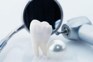 Lumineers faccette dentali senza limare il dente