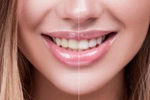 Per chi è indicato lo sbiancamento dei denti con luce blu