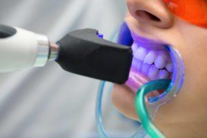 Sbiancamento professionale dei denti durata e fasi operative
