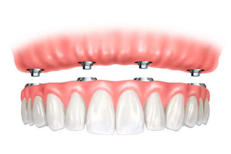 Tecnica All on Four per implantologia a carico immediato