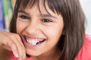 apparecchi per denti bambini