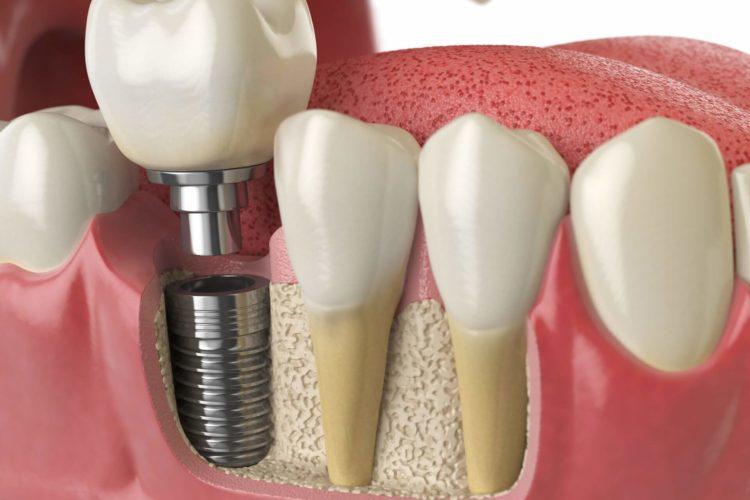 chirurgia implantare