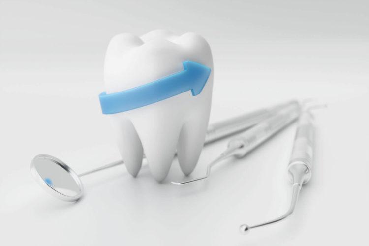 chirurgia orale estrazione denti
