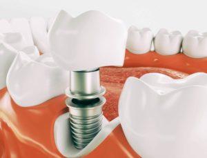 implantologia carico immediato senza osso
