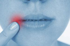 malattie orali