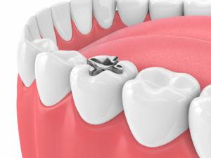 odontoiatria coservativa como