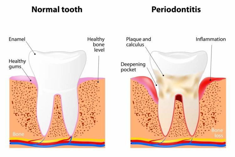 Malattie dei denti e parodontologia