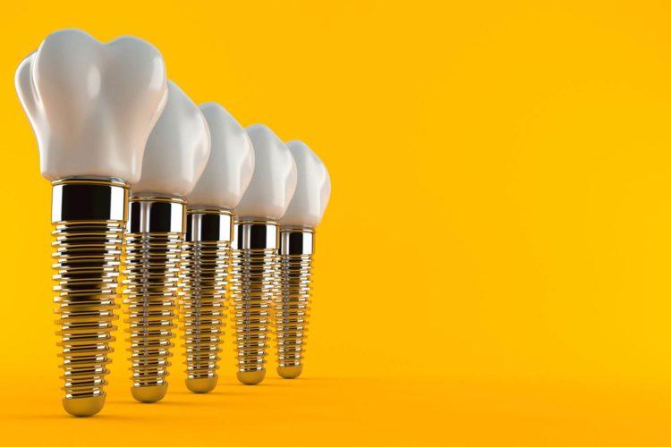 Rigetto in implantologia dentale