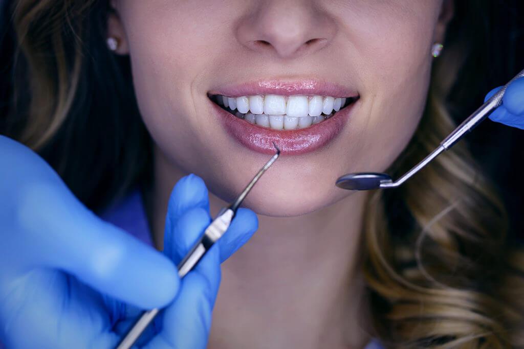 prevenzione dentale bocca
