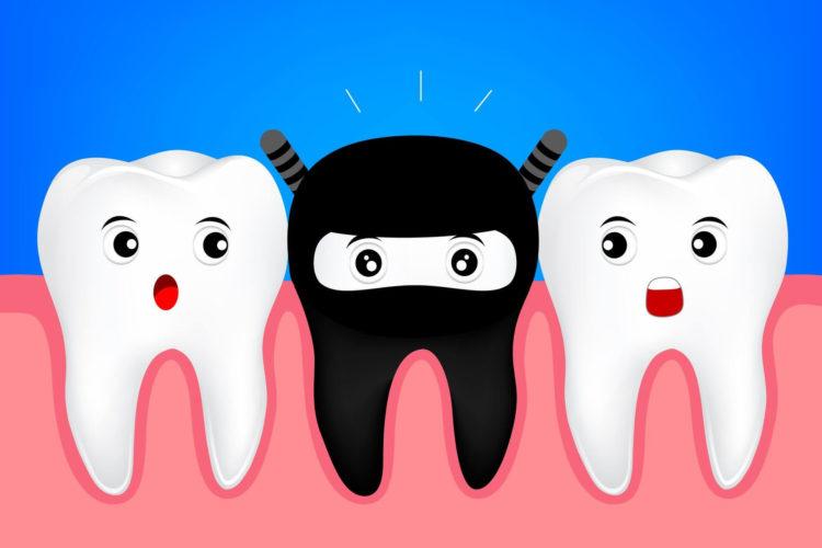 dente nero cause rimedi