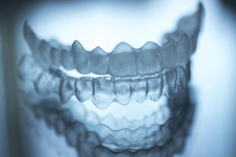 morso aperto ortodonzia