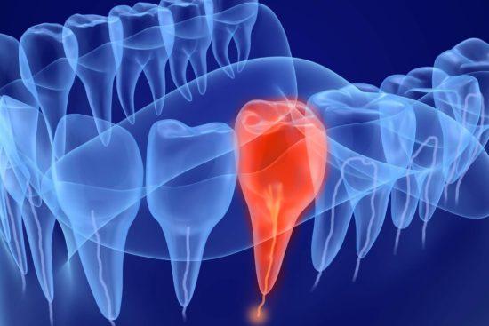 pericoli devitalizzazione denti